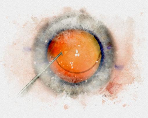 Cataract IOL surgery watercolor style print