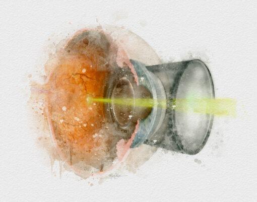 ophthalmologist gift retinal laser art print