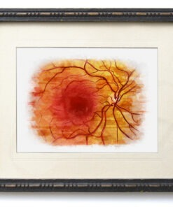 Marker Posterior Pole Anatomy framed, optometry gift