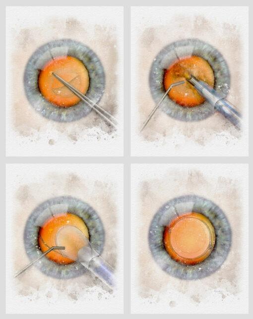 Cataract surgery art prints wall decor