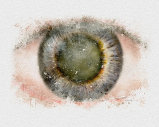 watercolor art print gift for Cataract surgeon
