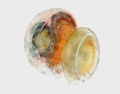 Watercolor Cataract eye doctor decor print