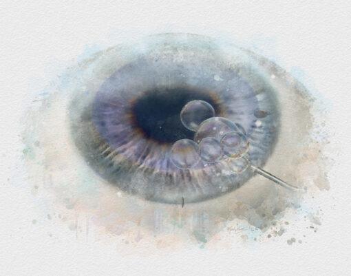 Cornea doctor gift DMEK eye surgery decor