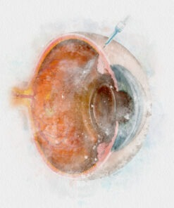 retina doctor art, intravitreal injection watercolor