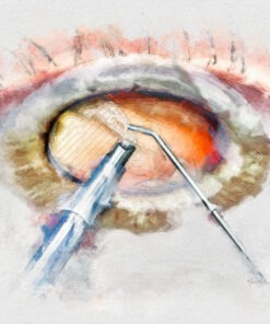 Cataract surgery art decor ophthalmologist gift