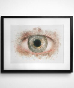 Watercolor PKP corneal transplant print framed