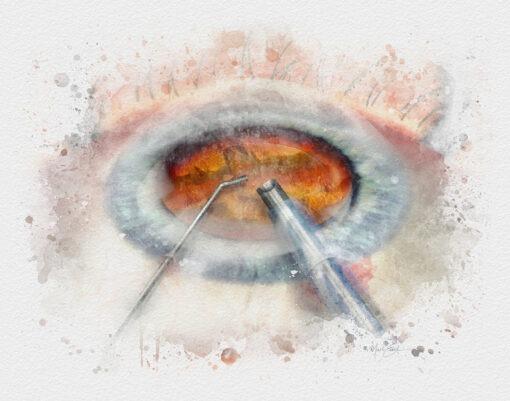 cataract surgery art print phacoemulsification